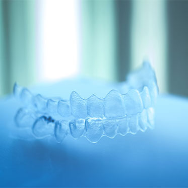 Our Aligners